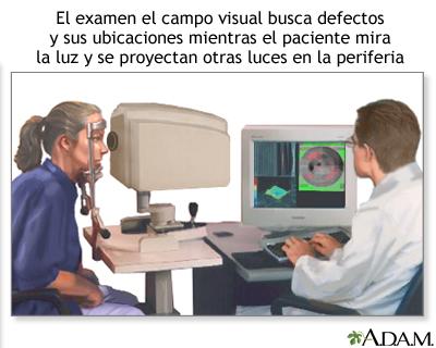 Examen del campo visual