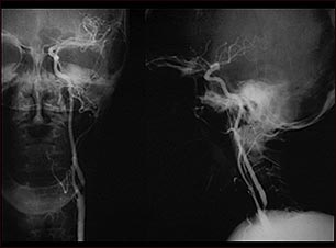 Estenosis carotídea; radiografía de la arteria izquierda