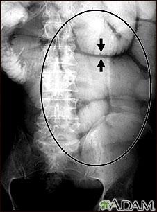 Ileo: Radiografía de la distensión intestinal