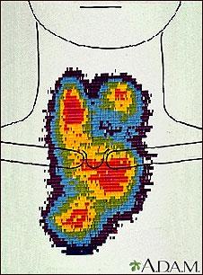 Gammagrafía del agrandamiento de la tiroides