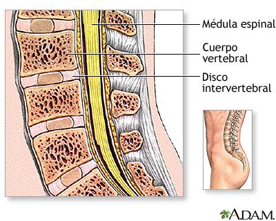 Cirugía de columna lumbar - Serie—Anatomía normal: MedlinePlus ...