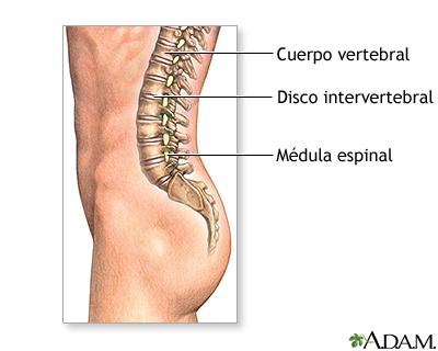 Correcto el ejercicio a los dolores en la espalda