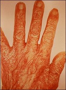 Erupción y excoriación en la mano por sarna