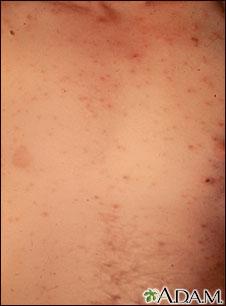 Lesiones en el tórax por varicela