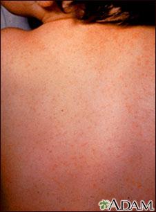 Echovirus tipo 9- Exantema