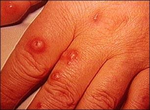 Criptococo cutáneo en la mano