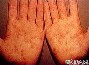Sífilis secundaria en las palmas de las manos