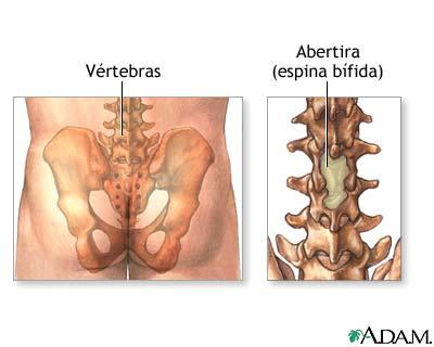 Meningocele - Serie—Anatomía normal: MedlinePlus enciclopedia médica