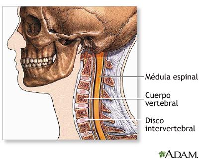 Cirugía de la columna cervical - Serie—Anatomía normal: MedlinePlus ...