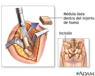 Injerto de hueso de la columna vertebral - Serie—Procedimiento ...