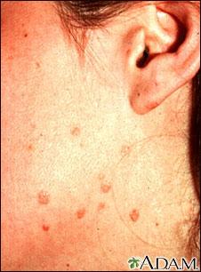Verrugas planas en la mejilla y el cuello