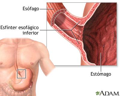Acalasia - Serie—Anatomía normal: MedlinePlus enciclopedia médica