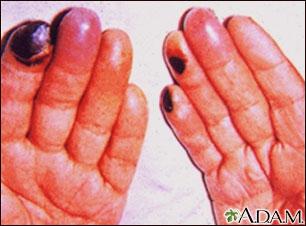 Crioglobulinemia de los dedos