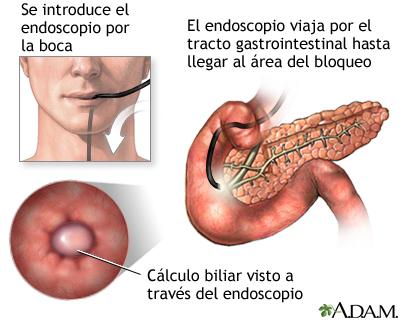 Pancreatitis - Serie—Procedimiento: MedlinePlus enciclopedia médica