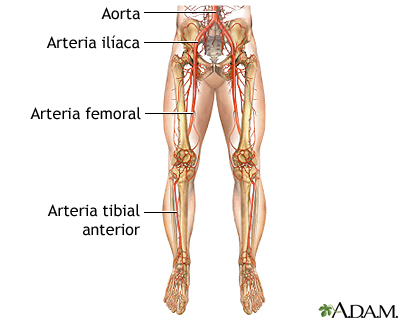 Cirugía de derivación arterial periférica - Serie—Anatomía normal ...