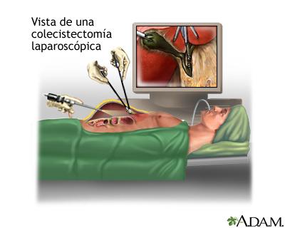 Ventajas de la cirugía por laparoscopía