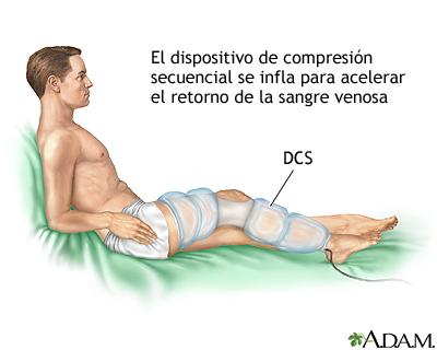 El tratamiento operativo varikoza de las extremidades inferiores por el láser