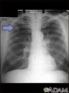 Adenocarcinoma; placa de rayos X de tórax
