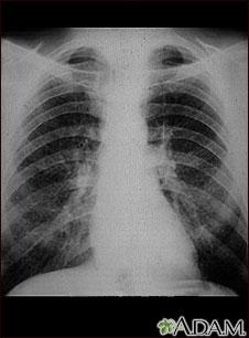 Pulmones de un trabajador del carbón; rayos X