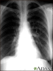Coccidioidomicosis - radiografía de tórax