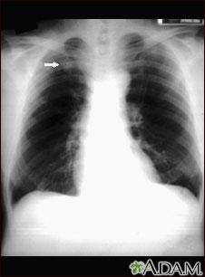 Nódulo pulmonar; vista frontal en placa de rayos X de tórax