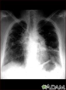 Sarcoide, etapa IV; rayos X de tórax