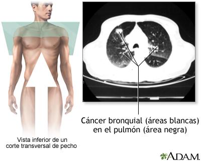 TC de cáncer bronquial