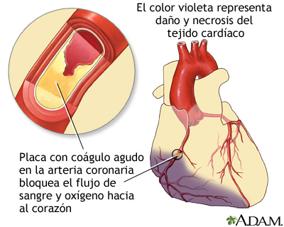Ataque cardíaco: MedlinePlus enciclopedia médica