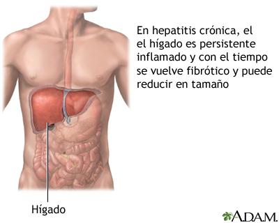 hepatitis b és prosztatitis Gyakran sok dolgot megyek a prostatitis miatt
