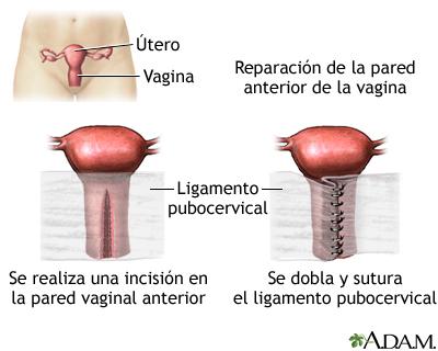 Reparación de la pared vaginal anterior