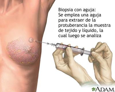 Biopsia con aguja del seno