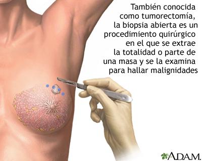 Biopsia abierta del seno