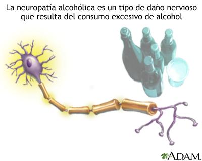 Neuropatía alcohólica