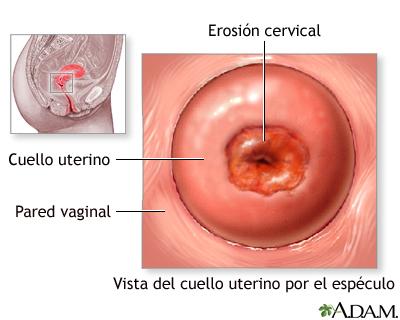 Vagina Wikipedia