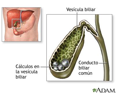 Colelitiasis
