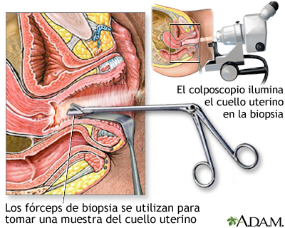 Biopsia dirigida por colposcopia