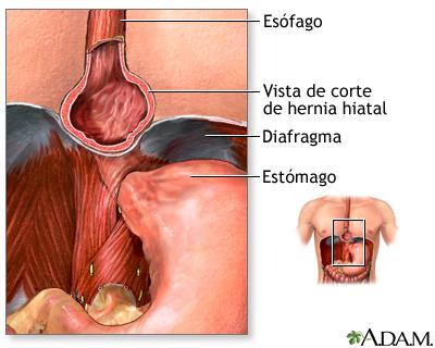 Hernia hiatal