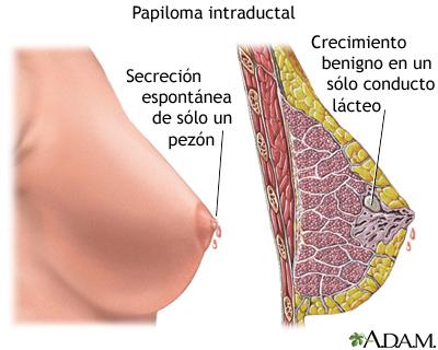 papilomatosis intraductal tratamiento