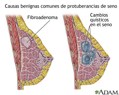 Causas de las protuberancias de seno