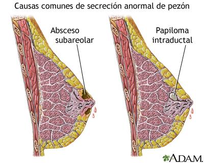 Secreción anormal del pezón