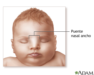 Puente nasal ancho
