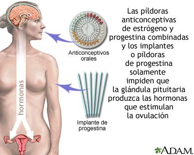 Anticonceptivos a base de hormonas