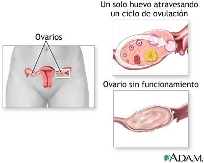 Hipofunción ovárica