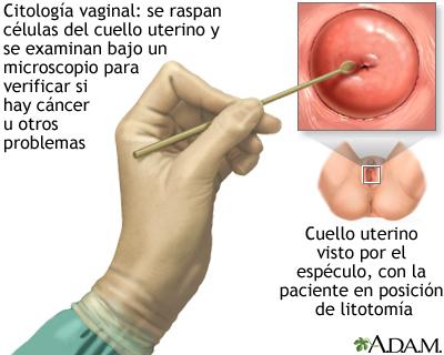 Prueba de Papanicolau: MedlinePlus enciclopedia médica