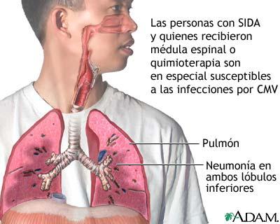 Neumonía por CMV