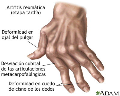 Artritis Reumatoidea Medlineplus Enciclopedia Medica