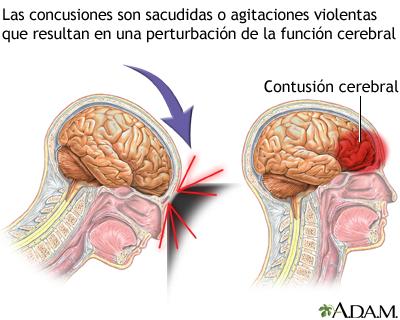 Conmoción Cerebral Medlineplus Enciclopedia Médica