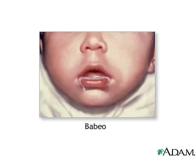 Babeo