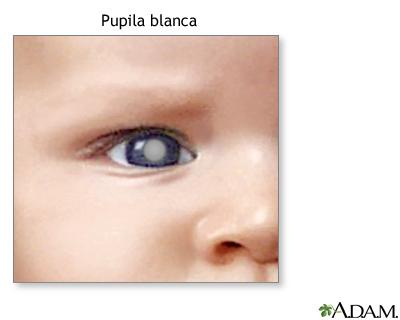 Manchas blancas en la pupila