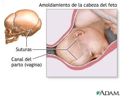 Moldeamiento de la cabeza fetal